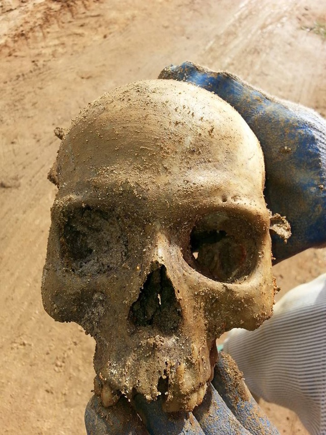 Skull found at construction site was 35-40 year-old male, analysis finds